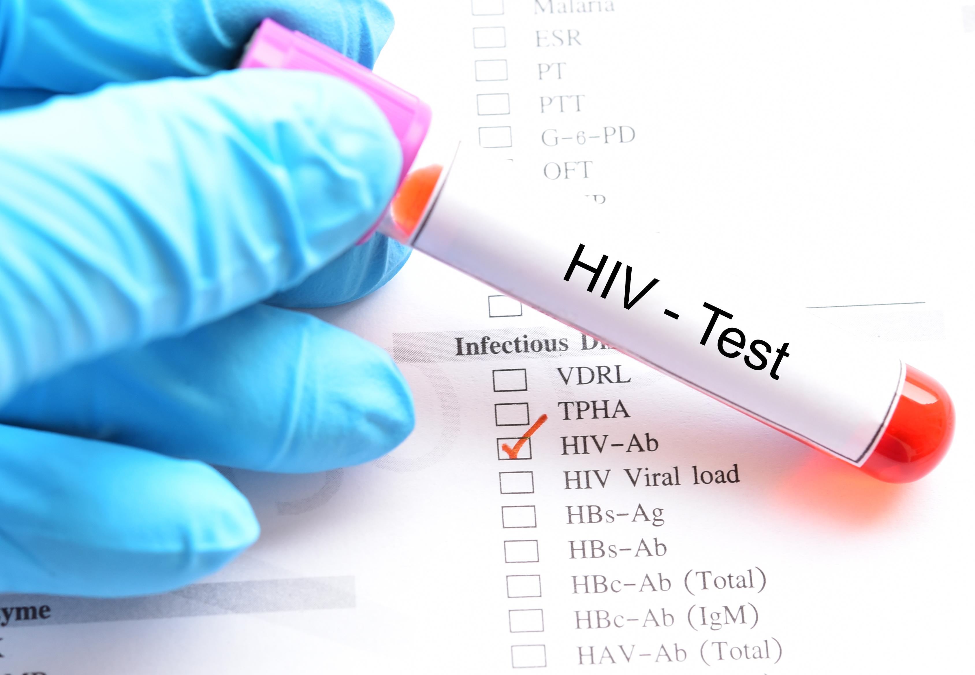 Blood sample for HIV test