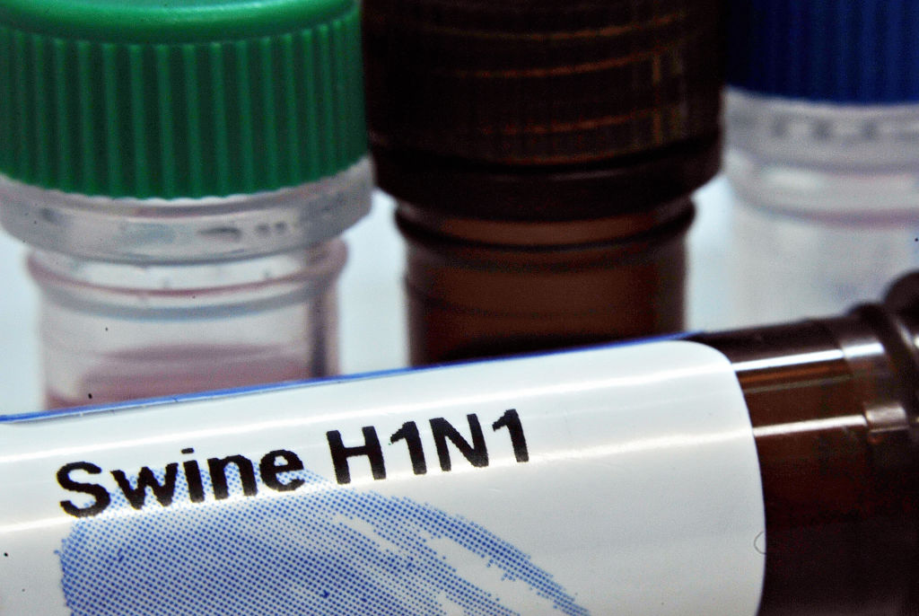DNA test kits of the the influenza A(H1N1) or Swine Flu virus prepared by PrimerDesign Ltd are displayed at the company laboratory in Southampton on May 2, 2009.  Two cases of swine flu apparently transmitted to people who had not travelled recently to Mexico were reported by authorities in Britain, as the number infected there rose to 13. AFP Photo/Leon NEAL (Photo credit should read Leon Neal/AFP via Getty Images)